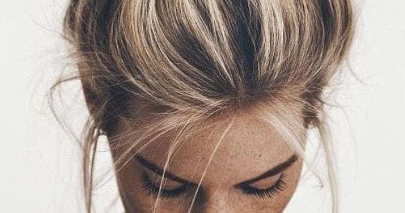 40++ Hairstyles that hide dandruff ideas