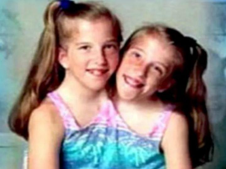 Abby y Brittany Hensel son dos hermanas siamesas nacidas en Minnesota, EUA, hace 27 años.