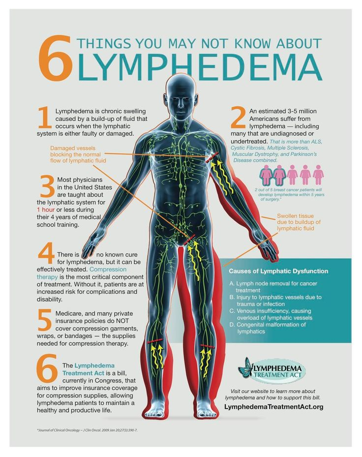 This is a really informative info graph about Lymphedema. We have a certified Lymphedema specialist on staff and would love to answer your questions about your treatment or services.  www.facebook.com/BurchPhysicalTherapy  http://burchpt.com/post-breast-c