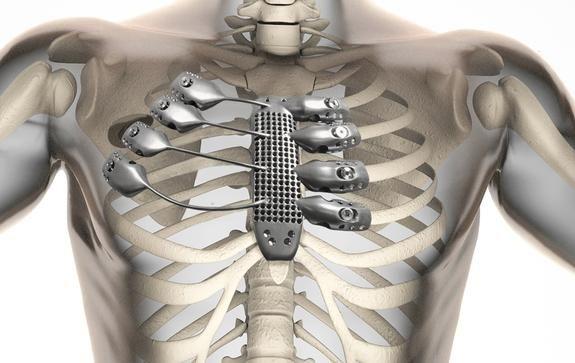 La tecnologia delle stampanti 3D compie passi da gigante anche in ambito chirurgico. Un impianto di sterno e costole su paziente affetto da cancro.