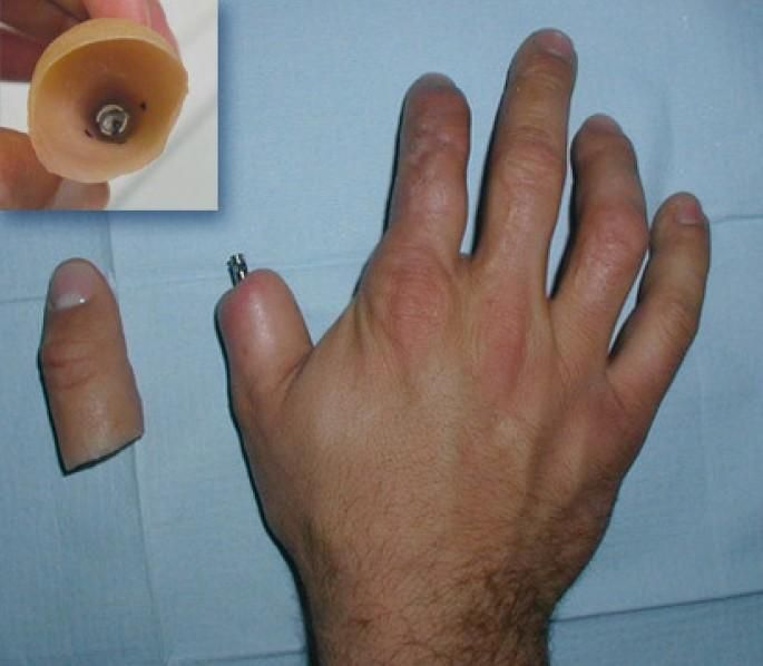 Prosthetic fingers a real thing.