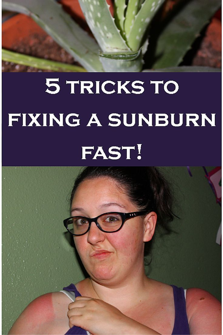 How to Heal a Sunburn Quickly, Great tips on using mainly items already in your kitchen to heal a sunburn fast!