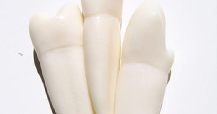 Alimentos después de una extracción dental. Las muelas del juicio son los molares ubicados en la parte trasera y en la parte superior e inferior de la boca. Algunas personas nunca requieren la extracción de las muelas del juicio, mientras que otras necesitan la extracción de una o de las cuatro. La extracción molar deja grandes agujeros en el área de la encía que requiere puntos de sutura ...
