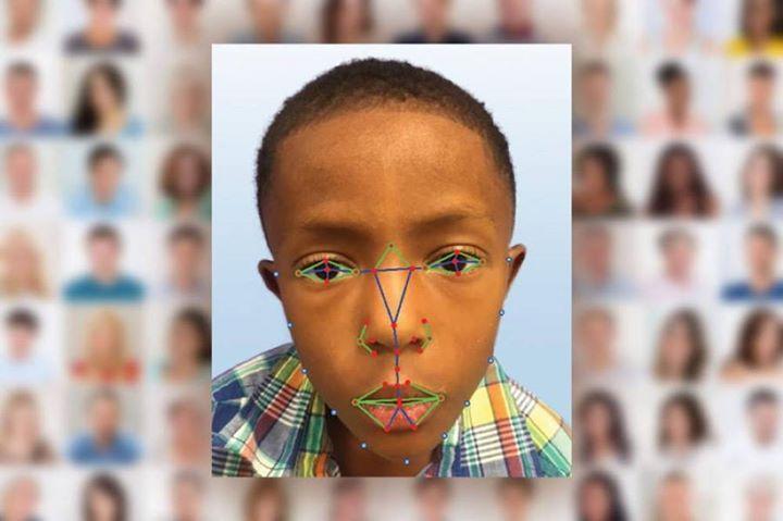 La reconnaissance faciale pour détecter une maladie génétique rare  http://ift.tt/2nhSr99      #Buzz #Video #Photo #Insolite #WTF #LOL #Fun #Fail #Geek #Cute #Choc #OMG #Win #Hot