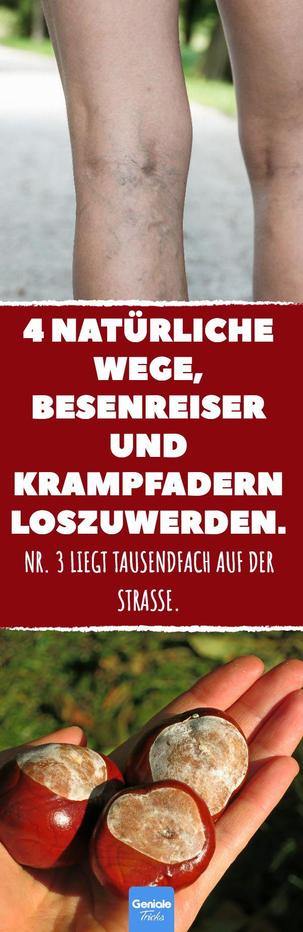 4 natürliche Wege, Besenreiser und Krampfadern loszuwerden. #krampfadern #besen… Steffi Ahrens