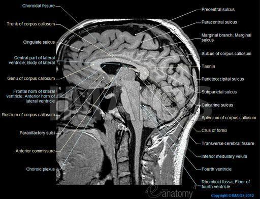 Anatomy of the brain (MRI)