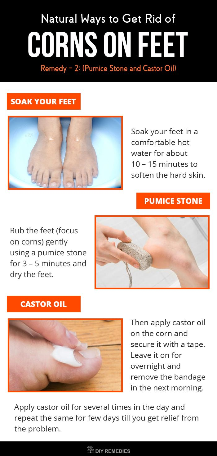 Yard moles and vinegar and castor oil - Natural Ways To Get Rid Of Corns On Feet