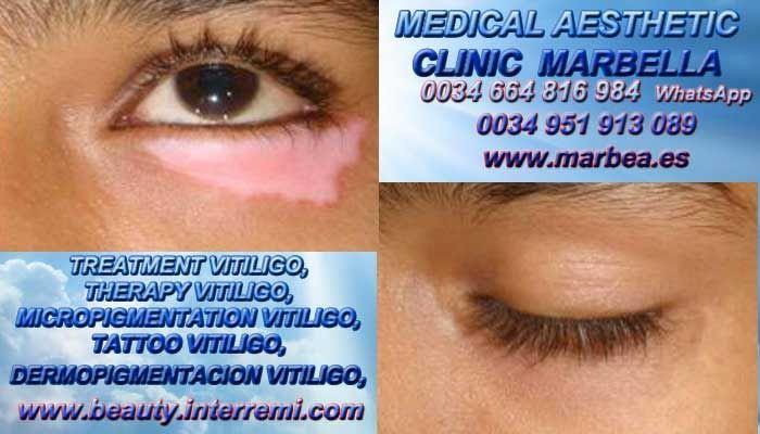 >;::VITILIGO TRATAMIENTO Vitiligo Cura Micropigmentación Vitiligo Camuflaje Vitiligo Tratamiento Para La Vitiligo Marbella or Córdoba