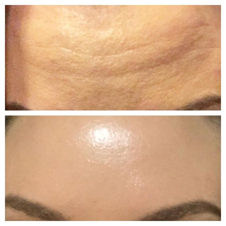 Worry lines? No worries! Anti Wrinkle Injections, 2 weeks before and after. Smooth + brow lift #aesthetics #aesthetic #beauty #smooth #brisbane #cosmetic #beforeandafter #injectables