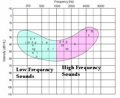 The Best Hearing Loss Simulations: Understanding Audiograms and the Impact of the Speech Banana