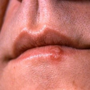 Top 5 Home Remedies For Herpes Simplex 2