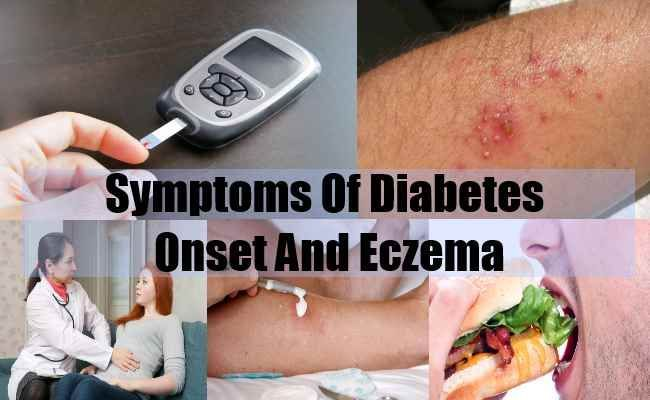 Borderline Diabetes Symptoms *** You can find more details by visiting the image link.