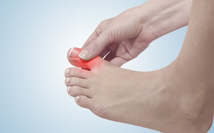 Potential Causes of Swollen Toe Joints