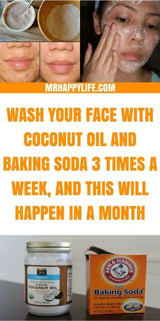 Baking Soda and Coconut Oil Face Wash For Glowing skin