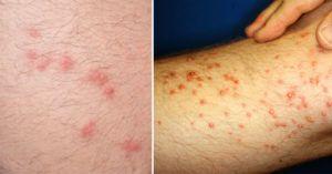 Seven Common Bug Bites & How To Identify Them   GHL Korea