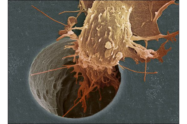 Cancer cells can spread through the body in a process known as metastasis. This cancer cell is moving down a pore in a filter. The image was taken at Cancer Research UK, where the spread of cancer is studied in the hope of finding a cure. (©Anne Weston )
