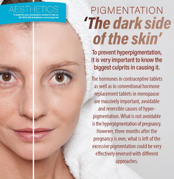 #Pigmentation: 'The dark side of of the skin' To prevent hyperpigmentation, it is very important to know the biggest culprits in causing it. The #hormones in contraceptive tablets as well as in conventional hormone replacement tablets in #menopause are massively important, avoidable and reversible causes of hyperpigmentation. What is not avoidable is the #hyperpigmentation of pregnancy. However, three months after the #pregnancy is over, what is left of the excessive pigmentation could be…