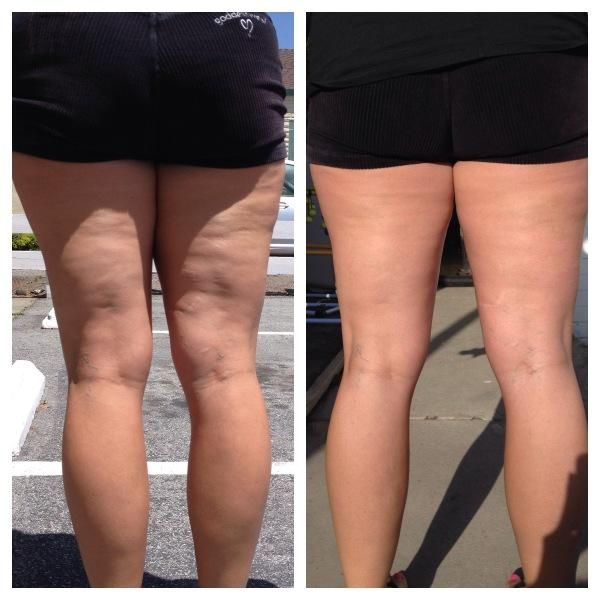 Nerium Firm Before & After