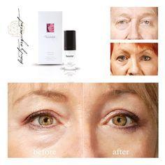 Eyesential- wirkt sofort gegen Tränensäcke und Augenfalten!