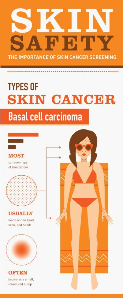 Types of #SkinCancer! More Info On What You Should Know About #Skin #Cancer - http://goo.gl/KHtM2L    #SkinCare  #London #dermatology #UK