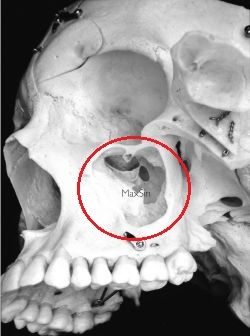 Max sinus - So you can get a toothache from a maxillary sinus infection.