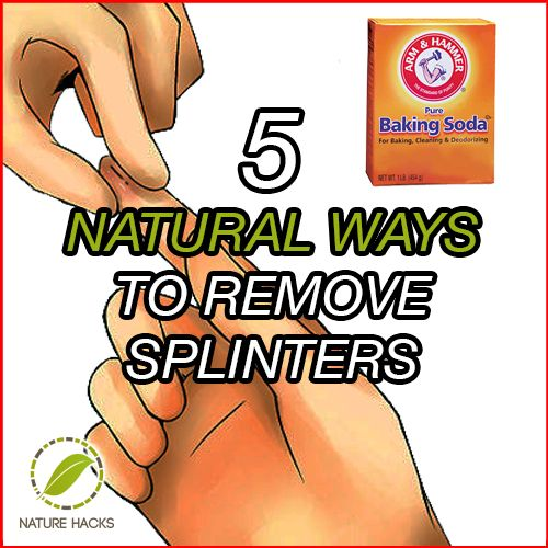 5 Ways to Naturally Remove Splinters