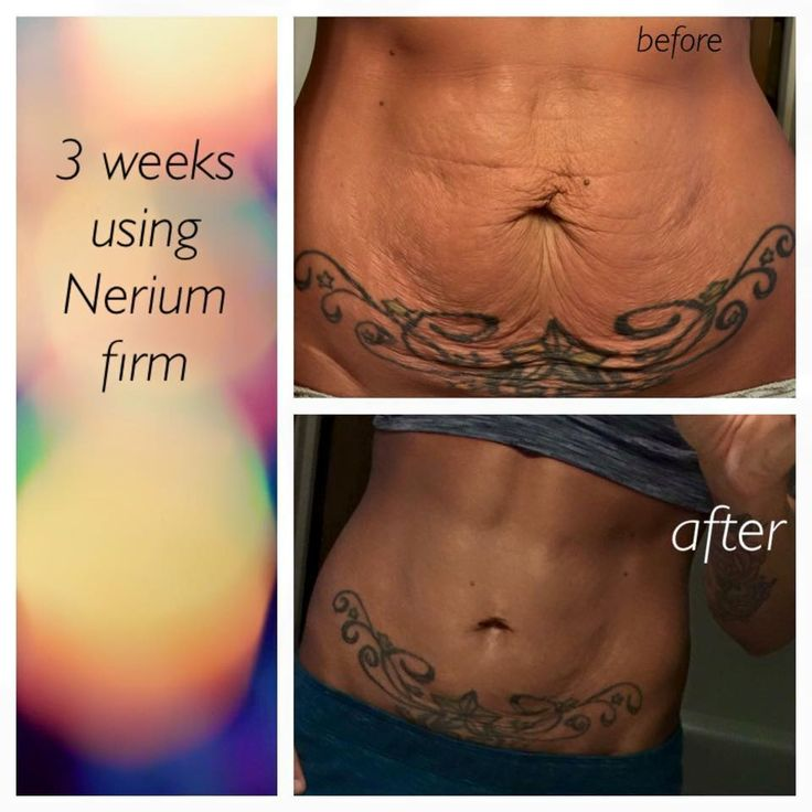 Nerium Firm tighter skin. 30 day money back guarantee!  megansmither.nerium.com