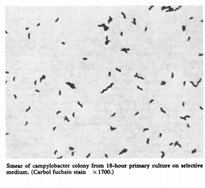 Características microscópicas: Tinción de carbol fucsina de colonia de Campylobacter.  bacilos gram negativos delgados, curvos, en espiral, de 0,2 a 0,5 µm de ancho y 0,5 a 5 µm largo.