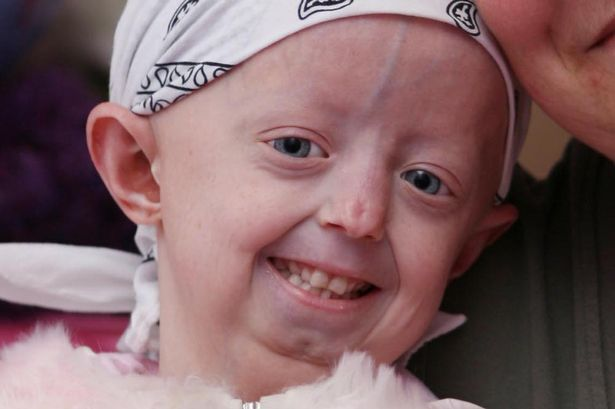 Hayley Okines, who fought premature ageing disease progeria, dies aged 17 (April 2015) #RareDisease