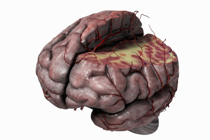 neurontin and your brain