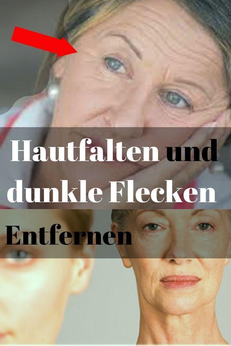 Entfernen Sie Falten Und Dunkle Flecken Diese Oma überrascht Alle Ärzte Entfernen Sie Hautfalten Und Dunkle Flecken Diese Better Aging Anti Aging Aging