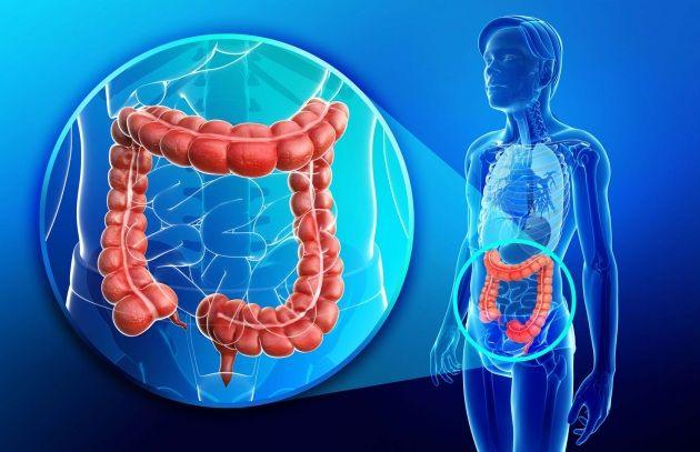 Fra le cause del morbo di Crohn, un'infezione cronica dell'apparato digerente, ci sarebbe il sodalizio fra due batteri e un fungo: insieme tessono una tela viscida e sottile che irrita l'intestino e scatena le manifestazioni della malattia.
