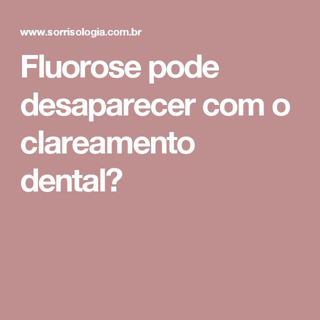 Fluorose pode desaparecer com o clareamento dental?