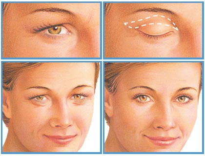 Drooping eyelids are common as you age but you don't have to let them interfere with your eyesight.