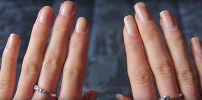 Una mujer sumerge las uñas en 2 conocidos productos. Un par de semanas después, ¡no puede creer lo que ve!