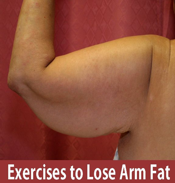 Exercises For Losing Arm Fat   Cute Parents // Follow me on Instagram --- @fitdetoxbody