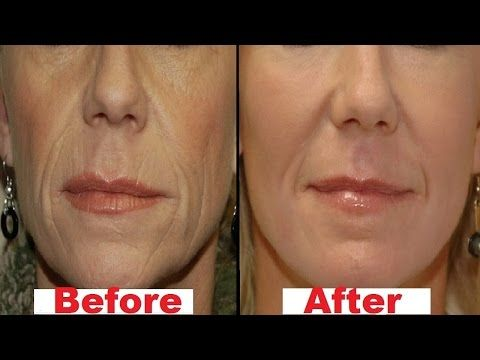 how to get rid of wrinkles on top lip