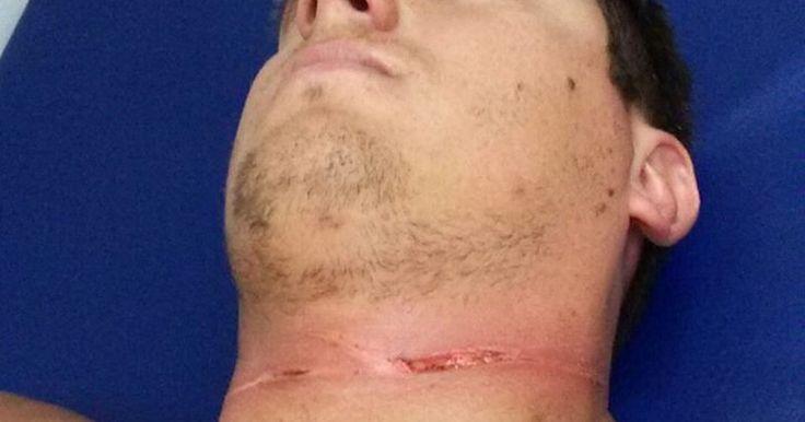 Após ser cortado com cerol, homem deita na moto e escapa de fatalidade