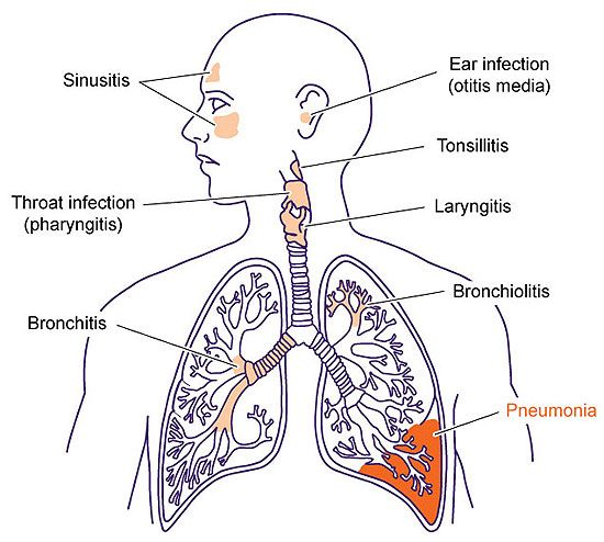 About Pneumonia And How To Treat It With Effective Home Remedies. Know all about it here in this article.