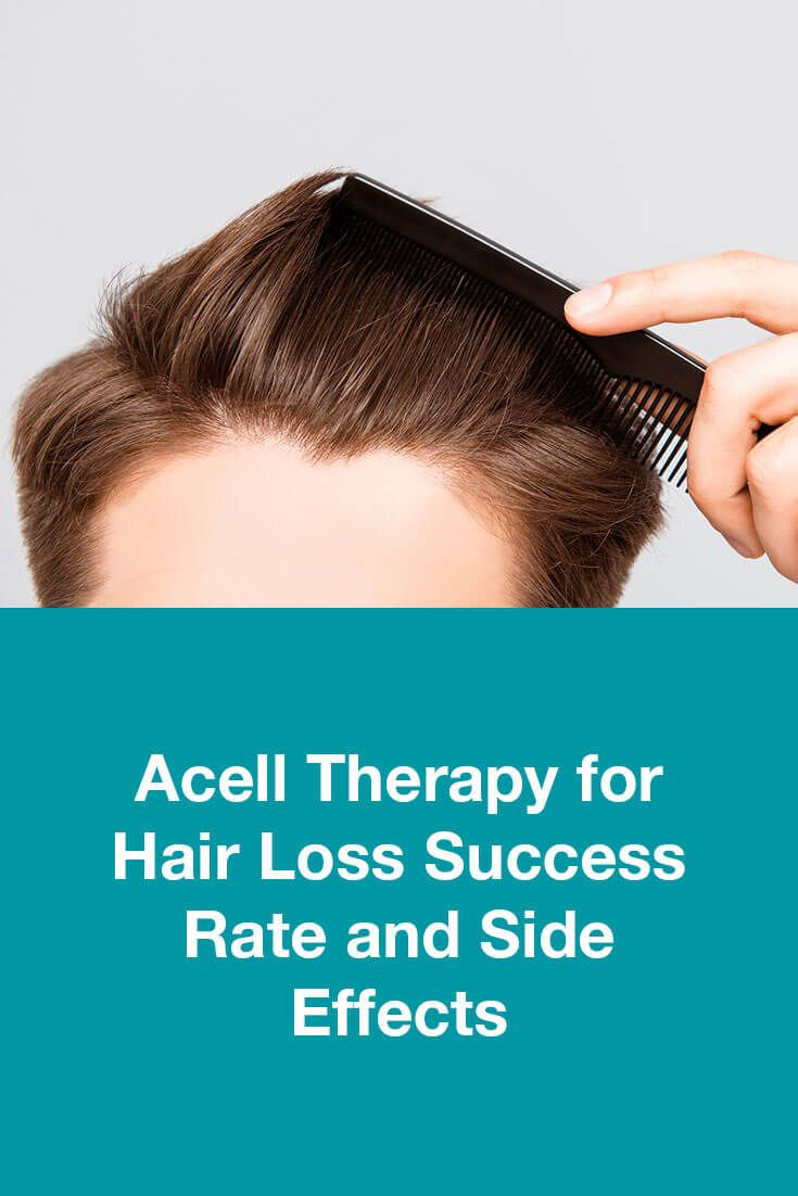 Acell Therapy For Hair Loss Success Rate And Side Effects Hair