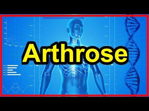 Die Arthrose-Lüge - Kann man Arthrose heilen? Entstehung Knorpelschaden, Arthrose Therapie verstehen - YouTube