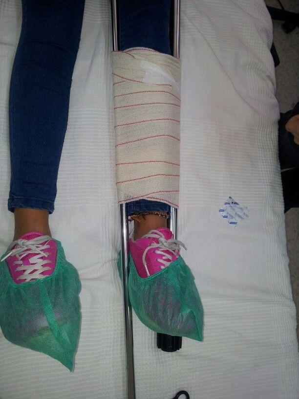 Inmovilizacion de pierna