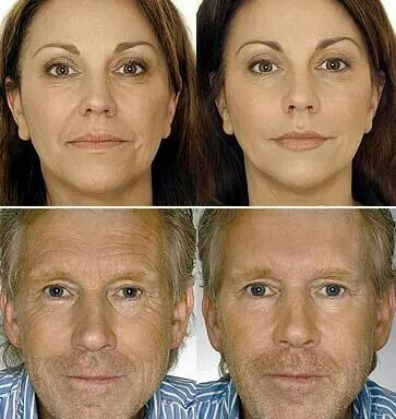 Instantly Ageless...BEFOR AND AFTER!!!You have to watch this video of Instantly Ageless in 2 minutes (YouTube). If you have wrinkles, bags under your eye, this is the product. If you want to sell this amazing product and make extra income, this is the company to work for. Check it out!!