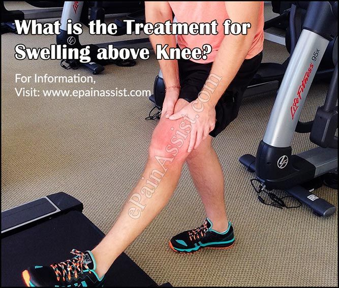 Swelling above knee is a fairly common condition and can affect when the joint or the soft tissues surrounding it are affected. It is sometimes also referred to as water on the knee. Know what can cause swelling above knee and what is its treatment.