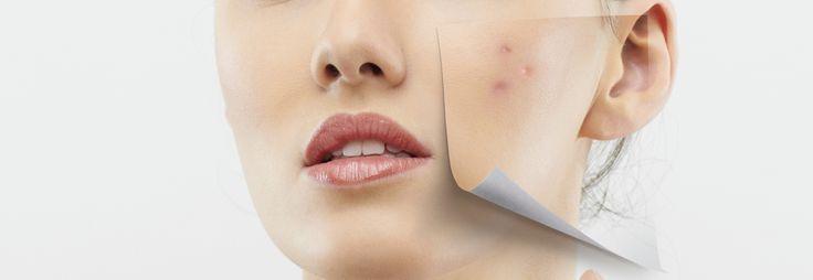 ¿Quieres conocer mejor las causas de la piel seca y descamada? Visita el nuevo artículo de nuestro blog http://www.nannic.es/blog/cuidados-de-la-piel/causas-de-la-piel-grasa-y-el-acne/