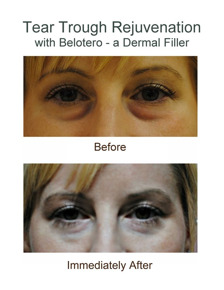 45 Best Images About Aesthetics Cosmetic Surgery On