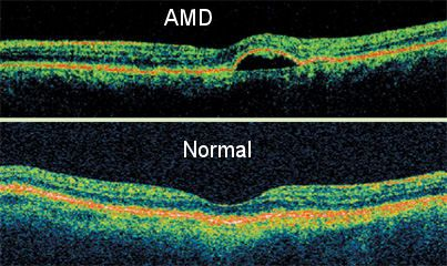 AMD. An Optical Coherence Tomography scan (commonly an OCT scan) Similar to MRI, this diagnostic technique employs light rather than magnetic waves to achieve higher resolution line scans that are combined to display of the individual, structural layers of the retina. It is invaluable and essential for early diagnosis of glaucoma, macular degeneration (MD) and diabetic retinal disease.