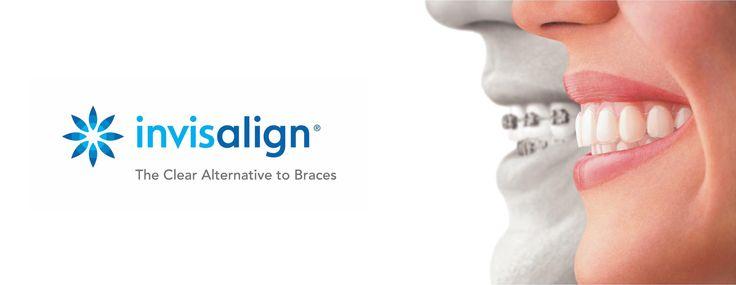 delta dentist invisalign https://deltadentalbc.com/portfolio-items/invisalign/