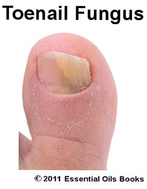 White Spots On Toenails Fungus You can get more information about nail care at Purifythis.com