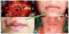 Powerful Guidelines For Avoiding, Managing and Curing Herpes Simplex Virus #herpes #cure #2016 #genital #remedy #natural #relief #treatment #hsv #women #health #summer #news #update